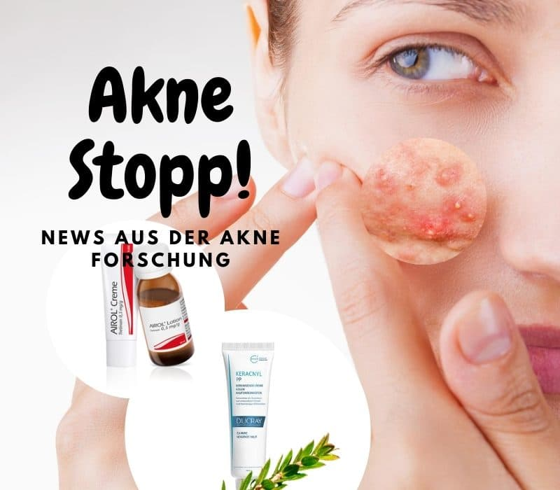 Positive Akne-News aus der Medizin