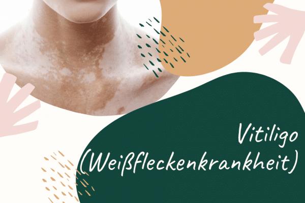 Vitiligo (Weißfleckenkrankheit) - fleckförmige Pigmentstörung der Haut